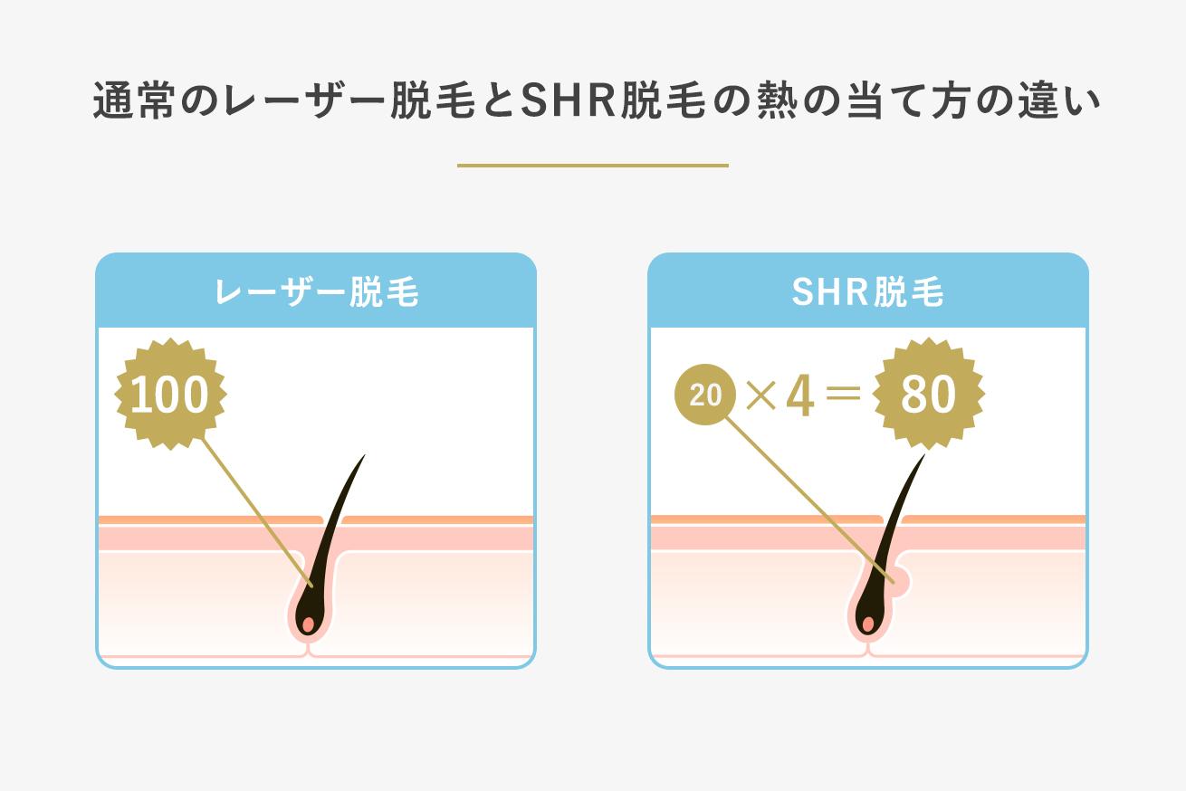 レーザー脱毛とSHR脱毛の熱の当て方の違いの図